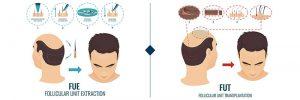 Saç Dökülmesi Nasıl Geçer?