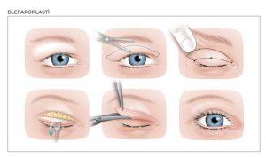 Göz Kapağı Estetik Fiyatı