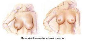 Sarkık Göğüsler Nasıl Toparlanır?